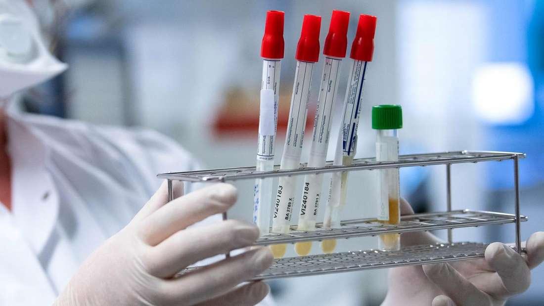 Eine Mitarbeiterin am Institut für Virologie der technischen Universität München (TUM) bereitet Proben von Menschen mit Covid-19 Verdacht in einem Labor für die weitere Analyse vor.